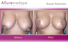 Reduction Mammoplasty with Inverted-T incision Before and After Photos at Affordable Cost in Mumbai, India