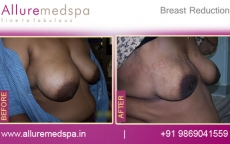 Key Hole Breast Reduction Surgery Before and After Images at Reasonable Cost in Mumbai, India
