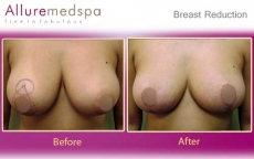 Reduction Mammaplasty Before and After Images in Mumbai, India