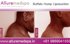 Buffalo Hump Liposuction Before After Photos