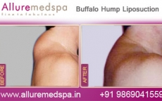 Buffalo Hump Fat Removal Before After Photos