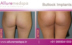 buttock-implants-before-and-after-gallery-andheri-west-mumbai-india
