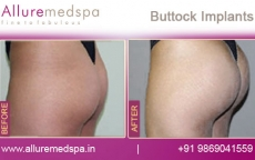 buttock-implants-before-and-after-images-andheri-west-mumbai-india