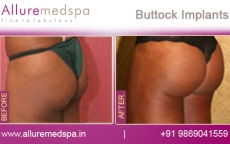 buttock-implants-before-and-after-photos-andheri-west-mumbai-india