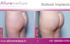 buttock-implants-before-and-after-pictures-andheri-west-mumbai-india