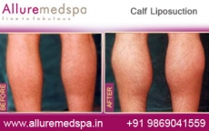 Calf Liposuction Before After Photos