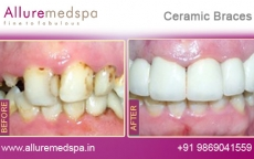 Ceramic Braces Treatment  Before after Photos