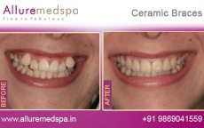 Ceramic Braces Treatment for Teeth Before after Photos