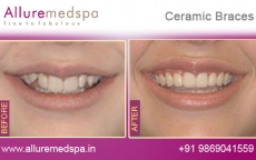 Ceramic Braces Treatment for Tooth Before after Photos