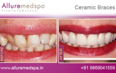 Dental Ceramic Braces Treatment Before after Photos