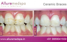 Ceramic Braces Treatment Before for Tooth after Photos