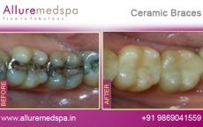 Dental Ceramic Braces Treatment for Teeth Before after Photos