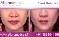 Buccal Fat Removal Before and After Images in Mumbai, India