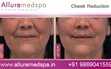 Buccal Fat Removal Surgery Results in Andheri, Mumbai, India