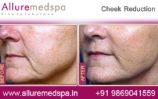 Cheek Reduction Plastic Surgery Before and After Gallery in Mumbai, India