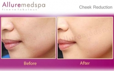 Cheek Reduction | Buccal Fat Removal Before and After Pictures in Mumbai, India