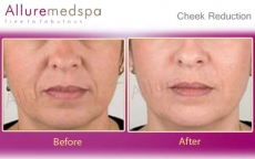 Cheek Reduction, Cheekbone Surgery Before and After Pictures in Andheri, Mumbai, India