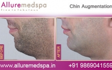Chin Augmentation Before and After Gallery by Celebrity Cosmetic Surgeon Dr. Milan Doshi in Mumbai, India