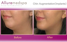 Chin Augmentation Before and After Images at Reasonable Price in Mumbai, India