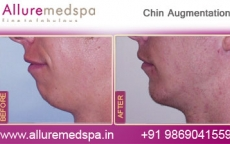 Chin Implants Before and After Photos by Celebrity Cosmetic Surgeon Dr. Milan Doshi in Mumbai, India