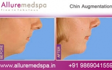 Female Chin Implant/Augmentation Before And After Images in Mumbai, India