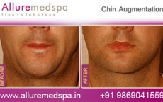 Chin Enhancement Surgery Before And After Photos in Mumbai, India