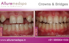 crowns-and-bridges-before-after-gallery