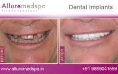 Teeth Implants Before and After Photos at Transparent Price in Mumbai, India