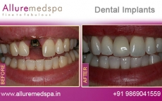 dental-implants-before-and-after-gallery-andheri-west-mumbai-india