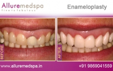 enameloplasty-before-and-after-gallery-andheri-west-mumbai-india