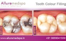 tooth-colour-filling-before-and-after-photos-andheri-west-mumbai-india