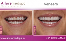 veneers-before-and-after-gallery-andheri-west-mumbai-india