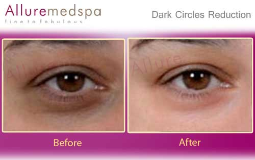 dark circle laser treatment cost