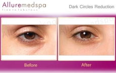 Dark Circles And Puffiness Bags Under Eyes Treatment Photos in Andheri, Mumbai