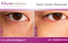 Dark Circles Removal Treatment Results in Andheri, Mumbai
