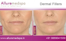 Dermal Fillers Before and After Gallery at Affordable Cost in Mumbai, India