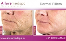 Dermal Filler Treatment Before and After Images at Transparent Price  in Mumbai, India