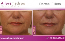 dermal-fillers-before-and-after-photos-andheri-west-mumbai-india