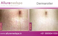 Dermaroller Treatment for Stretch Marks Before and After Photos in Andheri, Mumbai, India