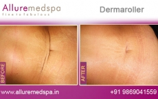 Dermaroller For Stretch Marks Before and After Photos at Reasonable Cost in Mumbai, India