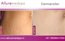Dermaroller for Stretchmarks Before and After Pictures by Celebrity Cosmetic Surgeon Dr. Milan Doshi in Mumbai, India
