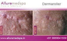 Dermaroller Skin Treatment Before and After Gallery at Affordable Price in Mumbai, India