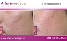Dermaroller For Acne Scars Before & After Photos in Andheri, Mumbai