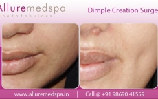 Cheek Dimple Surgery Before And After Gallery in Mumbai, India