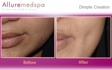 Dimples On Cheeks Before And After Photos in Mumbai, India