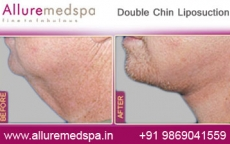 Double Chin Liposuction Before After Photos