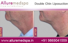 Double Chin Lipo Before After Photos