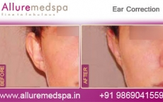 Ear Correction Before and After Gallery by Celebrity Cosmetic Surgeon Dr. Milan Doshi in Mumbai, India