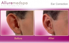 Ear Correction Before and After Pictures at Affordable Cost in Mumbai, India
