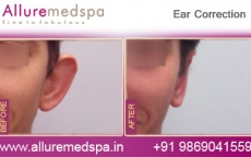 Ear Correction Surgery, Otoplasty Before & After Gallery in Mumbai, India